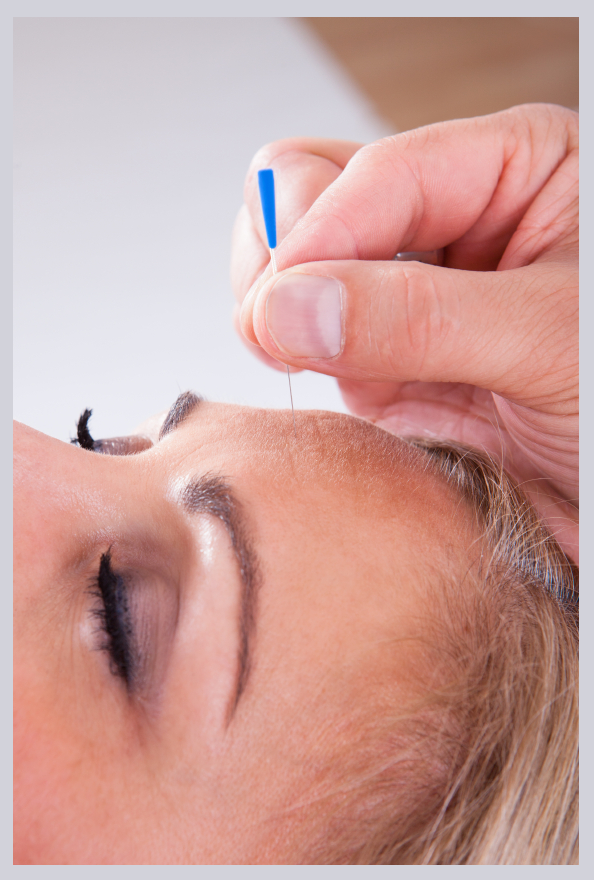FINAL - Cosmetic Acupuncture Image- The Healthworks Clinic, Dublin